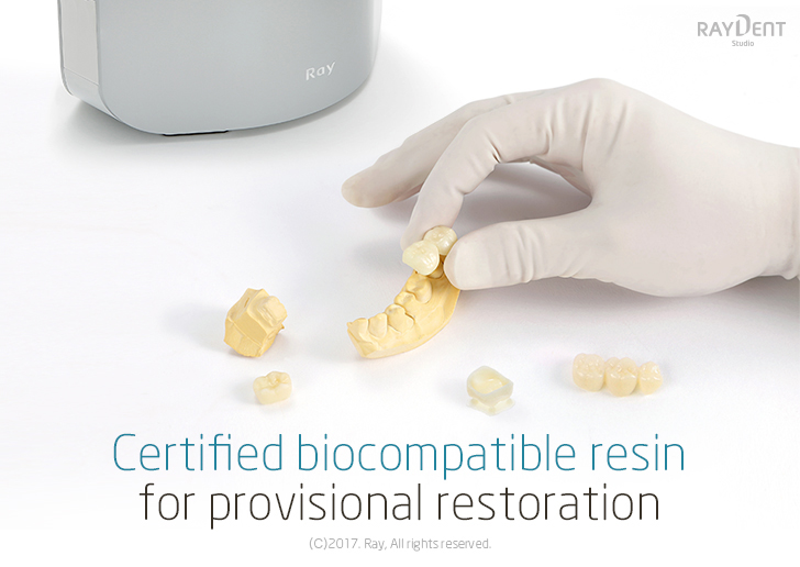 Certified biocompatible resin for provisional restoration